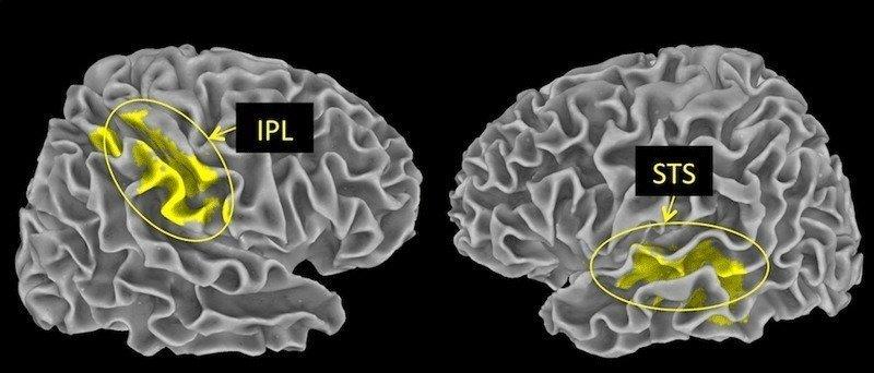 16-08-08 Gehirn.jpg