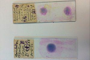 16-09-26 Malaria.jpg