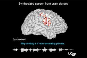 Gehirn zu Sprache