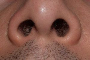 792px_nostrils_by_david_shankbone.jpg