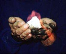brenn_hand1.jpg