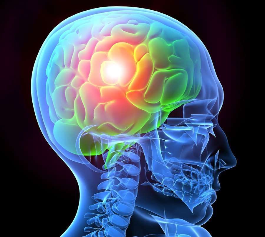 migrainebdw.jpg