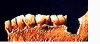 neandertalerknochen.jpg