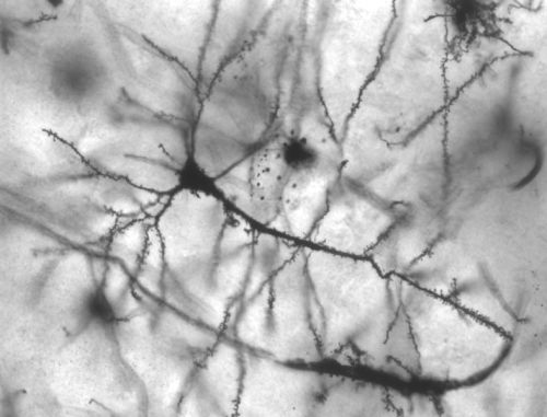 neuron_onl.jpg
